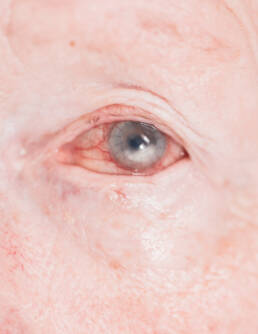 Corneal opacity pre-surgery (with stitches of previous intervention)