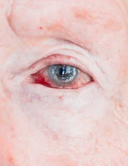 Cloudy eye days after corneal surgery